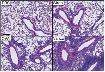 Lung sections from mice reveals worse evidence of asthma after vancomycin treatment